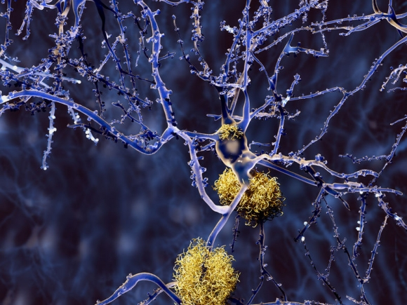 Alzheimer disease, neurons with amyloid plaques (Forrás: 123rf)